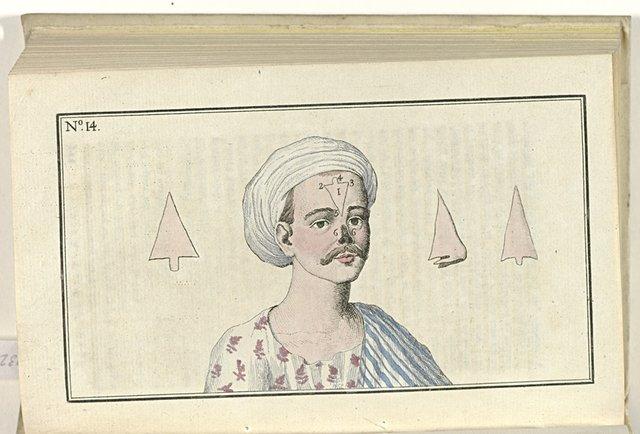 Le Mois, Journal historique, littéraire et critique, avec figures, no. 14: Chirurgie: Opération singuliere pratique aux Indes